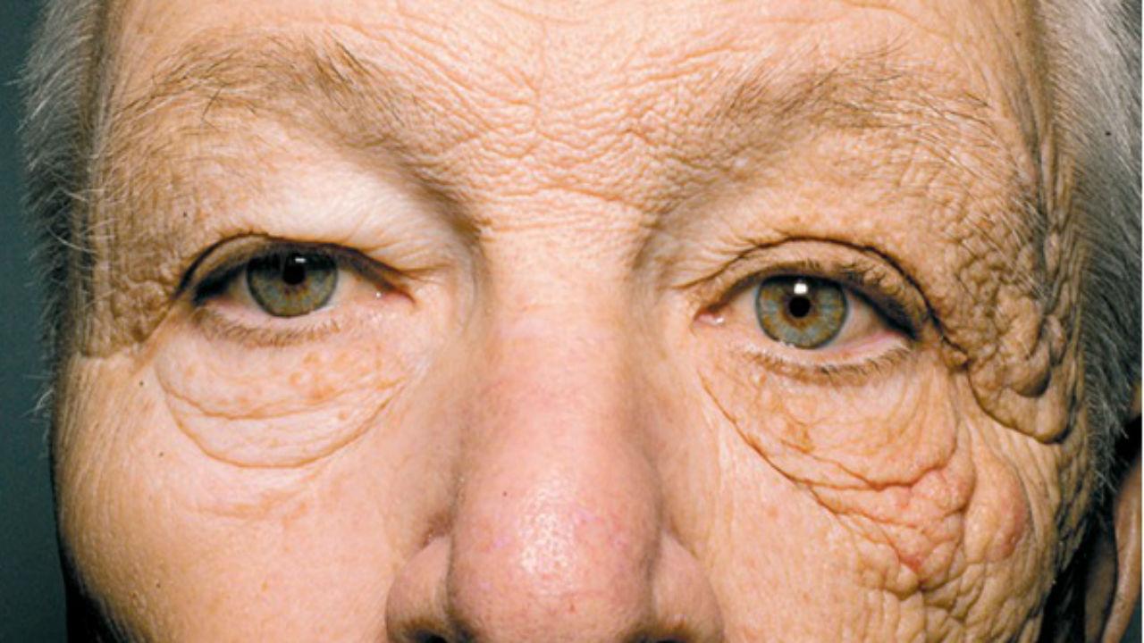 hombre con arrugas por no usar proteccion solar en interiores